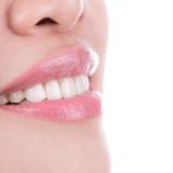 Impianti dentali: cosa sono, a chi servono